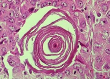 Nucléaire et cancer de la thyroïde