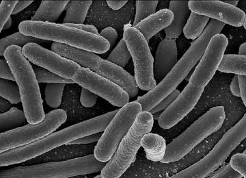 E. coli arrive au Canada par la porte ontarienne